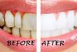 Tẩy trắng răng có tốt không? câu hỏi được nhiều bạn quan tâm