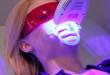 Tẩy trắng răng laser- Hàm răng trắng sáng nổi bật