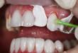 Bọc mão răng sứ là gì trường hợp nào bọc phù hợp nhất