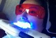 Giờ thì bạn đã biết tẩy trắng răng có hại gì không?