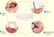 Quy trình làm cầu răng như thế nào?