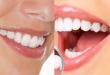 Răng hơi hô có nên niềng hay bọc sứ để làm thẳng đẹp lại