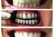 Cách làm trắng răng với than hoạt tính có hiệu quả không?
