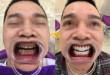 Làm trắng răng vĩnh viễn – Bật mí cách được ưa chuộng nhất