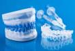 Làm trắng răng khay nhựa trong suốt tại nhà có ưu điểm gì, ai phù hợp?