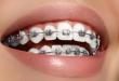 Bật mí ưu nhược điểm của niềng răng mắc cài là gì?