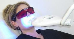Sự thật ít ai biết của công nghệ tẩy trắng răng đang hot hiện nay