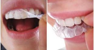 Phương pháp làm trắng răng giúp loại bỏ sạch mọi mảng bám