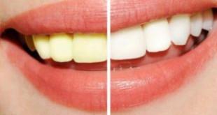 Phương pháp tẩy trắng răng khoa học cũng phải công nhận