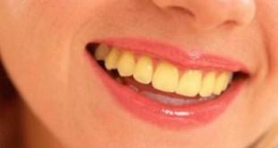 Răng bị ố vàng nguyên nhân và biện pháp làm sao trắng lại