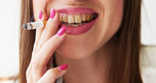 Giải đáp thắc mắc của bạn xung quanh vấn đề: Tại sao vàng răng?