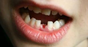 Răng sữa có chân không? Bảo vệ răng sữa như thế nào?