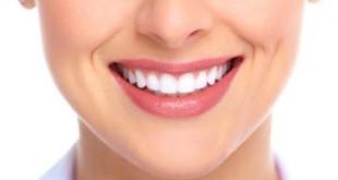 Bọc răng sứ: Trường hợp nào nên và trường hợp nào không nên?