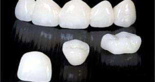 Bọc răng sứ có bền không? Chuyên gia hàng đầu giải đáp
