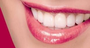 Có nên bọc răng sứ không dưới góc nhìn của chuyên gia