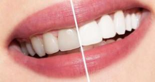 Làm trắng răng bằng laser bao nhiêu tiền? Chi phí tẩy trắng răng
