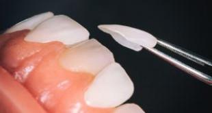 Làm trắng răng veneer có được không? – Bác sĩ nha khoa giải đáp