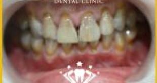 Bật mí cách làm trắng răng nhiễm tetracycline nhanh và hiệu quả nhất