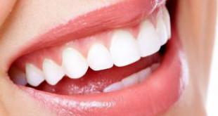 Có nên đi làm trắng răng không? -Hình ảnh hiệu quả dưới sẽ trả lời bạn