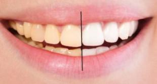 5 cách làm trắng răng hiệu quả tại nhà Vĩnh Viễn sau 1 lần
