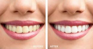 Làm trắng răng uy tín Hà Nội – Mách bạn địa chỉ UY TÍN số 1 hiện nay