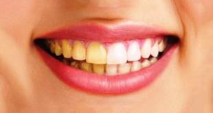 3 Cách làm trắng răng trong vòng 5 phút bằng nguyên liệu sẵn trong nhà