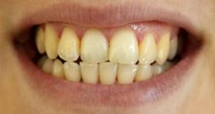 4 Cách làm trắng răng bị ố vàng đơn giản, siêu tiết kiệm