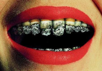 3 Cách làm răng trắng hơn không biết sẽ hối hận cả đời
