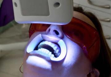 Giật mình với sư thật: Tẩy trắng răng bằng laser có hại không?
