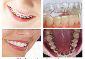 Niềng răng vẩu- phương pháp lấy lại nụ cười xinh
