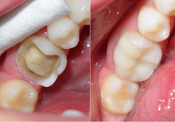 Quy trình trám răng sâu như thế nào? XEM TẠI ĐÂY