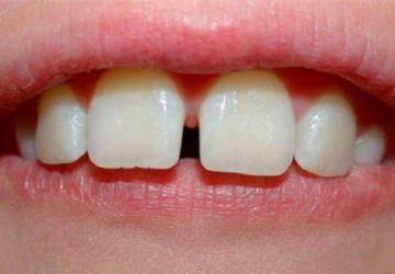 Trám răng thưa hiệu quả nhất năm 2017 Răng khít đẹp