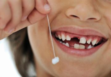 Răng sữa bị sâu có nên nhổ hay không?