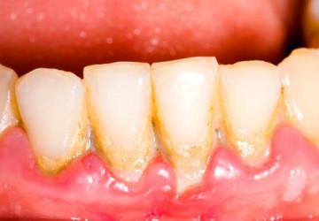 Răng bong tróc – Nguyên nhân và cách điều trị