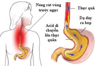 3 Phương pháp chữa hôi miệng từ rau quả