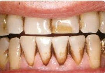 Vết dính trong răng