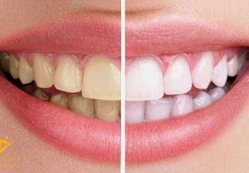 Làm trắng răng nên kiêng ăn gì? TOP thực phẩm cần tránh