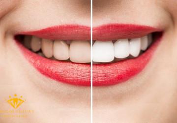 Giá tẩy trắng răng tại Hà Nội – Yếu tố nào quyết định đến chi phí