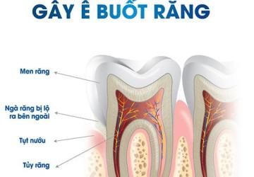 Nguyên nhân và những cách phòng ngừa ê buốt chân răng