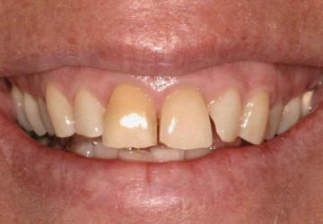 Những nguy hiểm khi tái tạo thiếu men răng