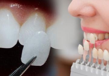 Cách điều trị vàng răng do nội sinh