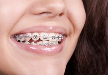 Nắn chỉnh nha không đơn thuần là thẩm mỹ răng