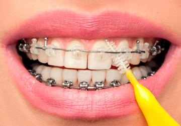 Những lưu ý khi niềng răng mắc cài – Nha khoa Dencos luxury