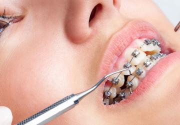 Video quy trình niềng răng mắc cài tại Nha khoa Dencos luxury