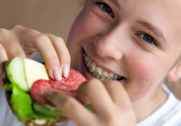Chăm sóc sau khi niềng răng mắc cài, giữ vệ sinh đúng cách