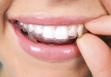 Những lưu ý khi niềng răng không mắc cài, trước và sau thực hiện